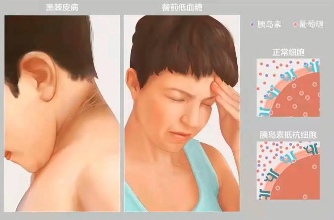 树兰(杭州)医院组建胰岛移植团队 提供专业评估和咨询